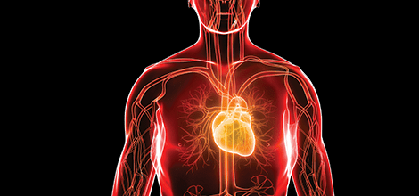 Medical negligence claims in cardiology - The MDU
